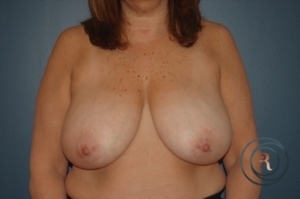 Morristown Breast reduction Before