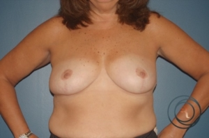 Morristown breast reduction after