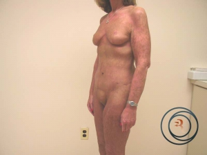 Extended tummy tuck New Jersey after phoyo