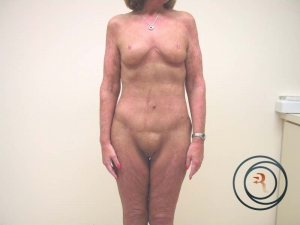 Abdominoplasty After Photo