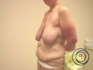 Extended tummy tuck New Jersey before photo