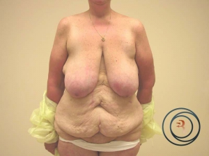 Abdominoplasty Before Photo