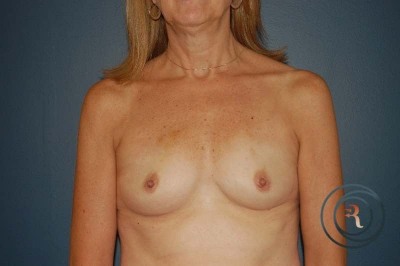 Breast augmentation before front