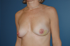 before breast reconstruction by Dr. Rafizadeh