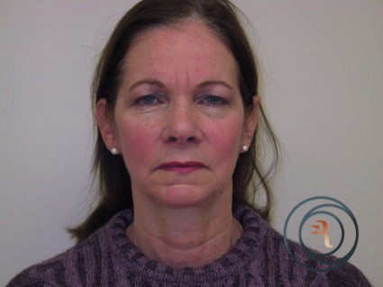 Before Photo of patient going for facelift brow lift and eyelids by Dr Rafizadeh Morristown N.J.