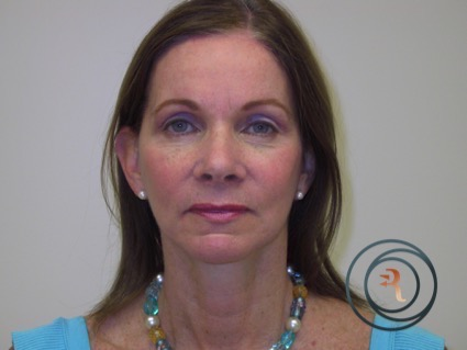 After Photo facelift brow lift eyelid surgery performed by Dr. Rafizadeh Morristown N.J.