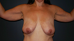 before picture of patient with breast ptosis and excess arm skin and fat.