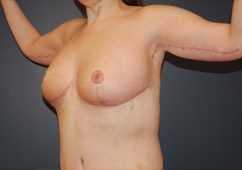 arm lift and breast reduction combination NJ