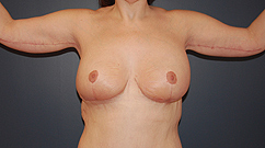 After bilateral breast reduction and brachioplast.