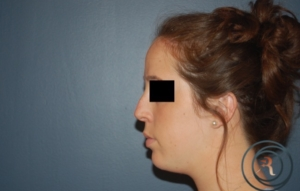 RHINOPLASTY NJ Before