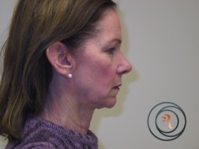 Before Photo side view facelift, brow lift and eyelid surgery by Dr. Rafizadeh Morristown N.J.