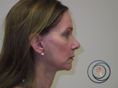 After Photo side view FAcelift, Brow lift eyelid surgery done by Dr. Rafizadeh Morristown N.J.